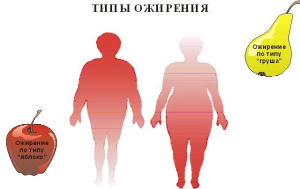 Типы ожирения. Фото из открытого доступа
